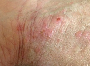Eczema &  Contact Dermatitis | Houston Allergist | Texas Allergy | Texas Allergy Group